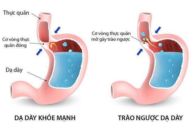 Cách nhận biết dấu hiệu bệnh trào ngược dạ dày thực quản