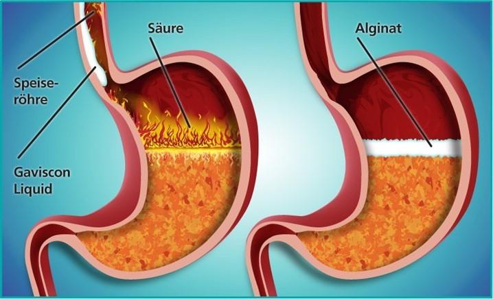 Tổng quan về bệnh trào ngược dạ dày thực quản (GERD) – Thực hành trong lâm sàng (Phần 1)
